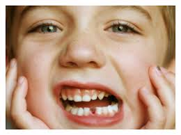 What to Do If Your Child Has a Loose Tooth | Pediatric ...